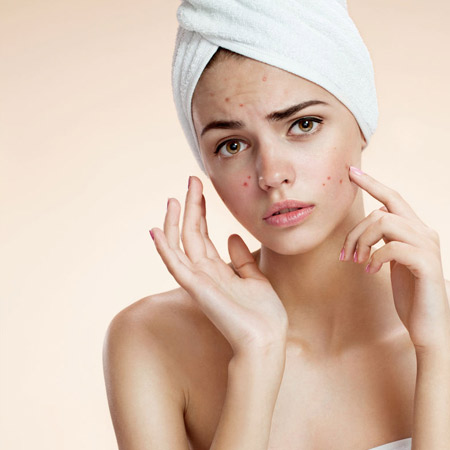 acne-treatment-in-hyderabad