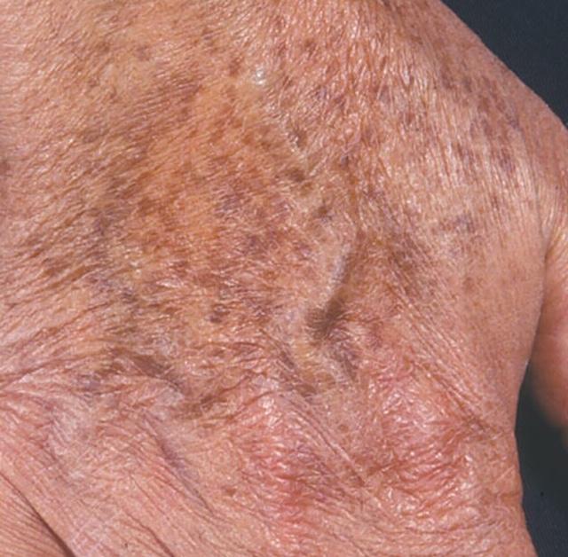 Symptoms of Sun spots