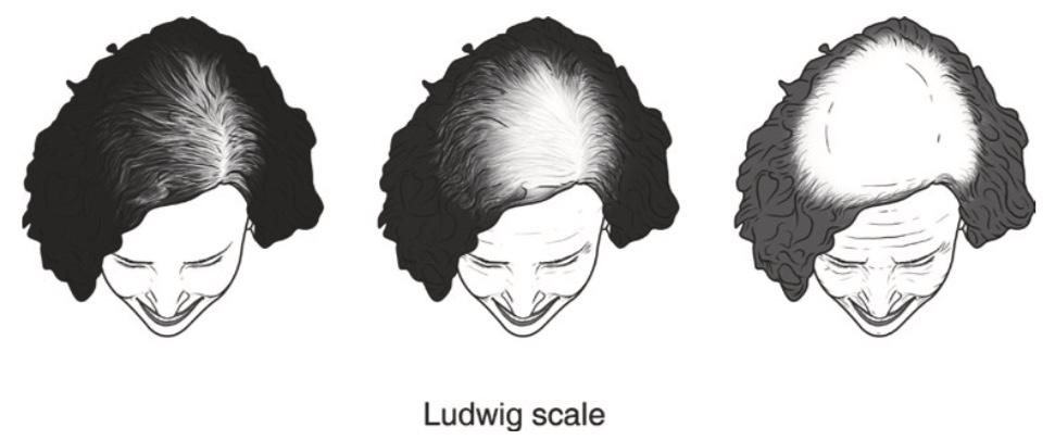 Classification of Hair Loss in Women